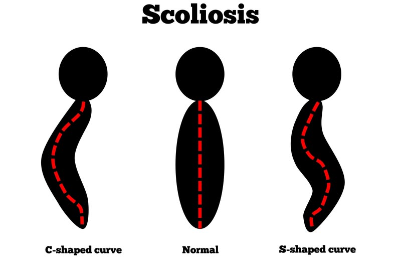 Baltimore, MD scoliosis treatment
